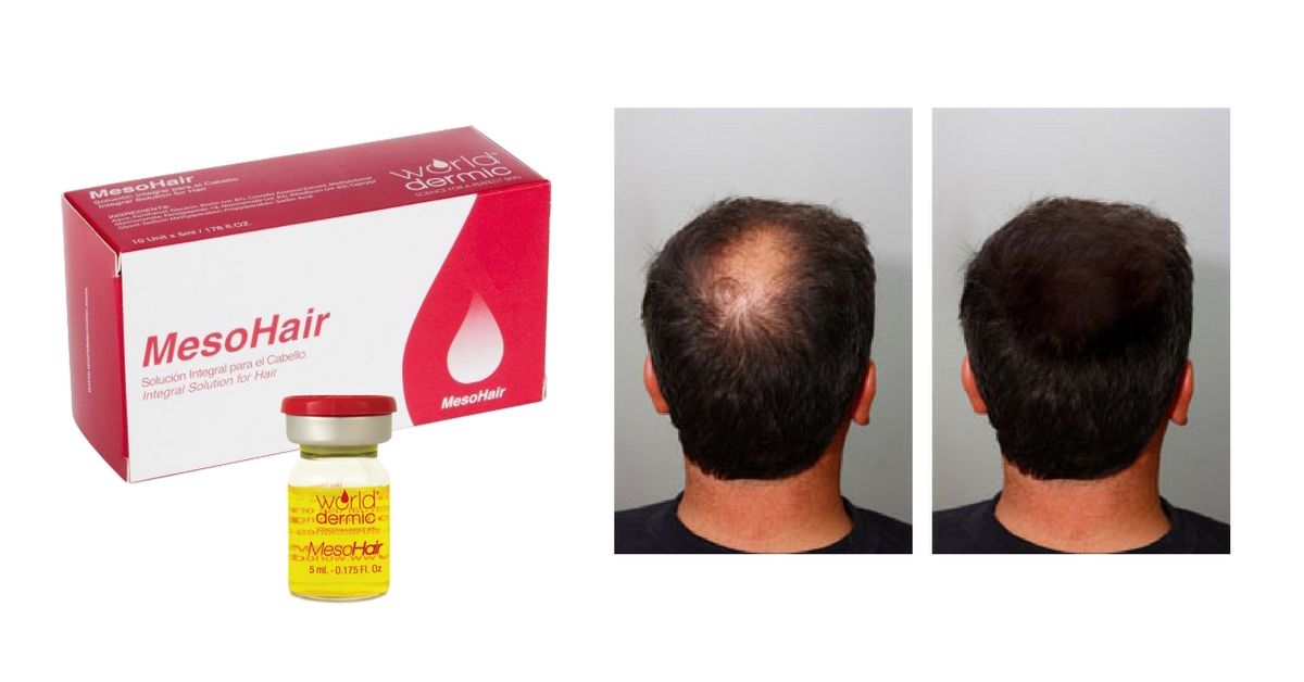 Mesotherapy Hair Restoration